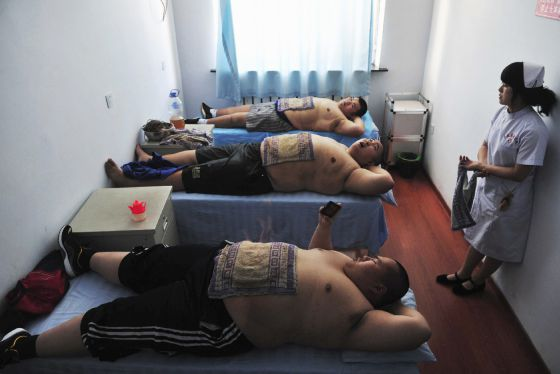 La lucha contra la obesidad es una preocupación en muchos países, incluso con métodos inverosímiles, como el del trapo sobre el estómago en China.