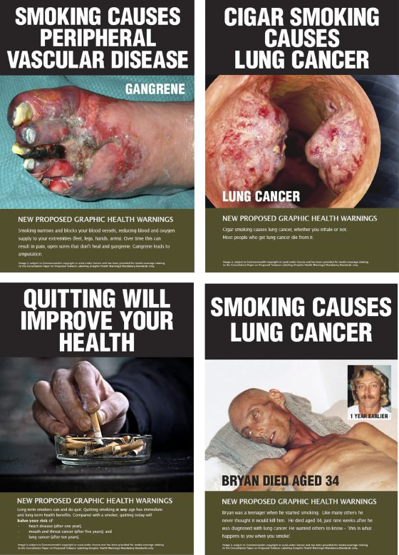 Combinación de cuatro imágenes distribuida por el Gobierno de Australia con algunas de las advertencias sobre el riesgo para la salud de fumar que aparecerán en las cajetillas de tabaco.