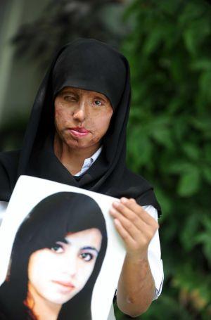 Unos padres matan a su hija rociándola con ácido en Pakistán 1351852888_399403_1351884930_noticia_normal