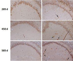 Cerebro normal de ratón (izquierda) y con las placas características del alzhéimer (derecha)