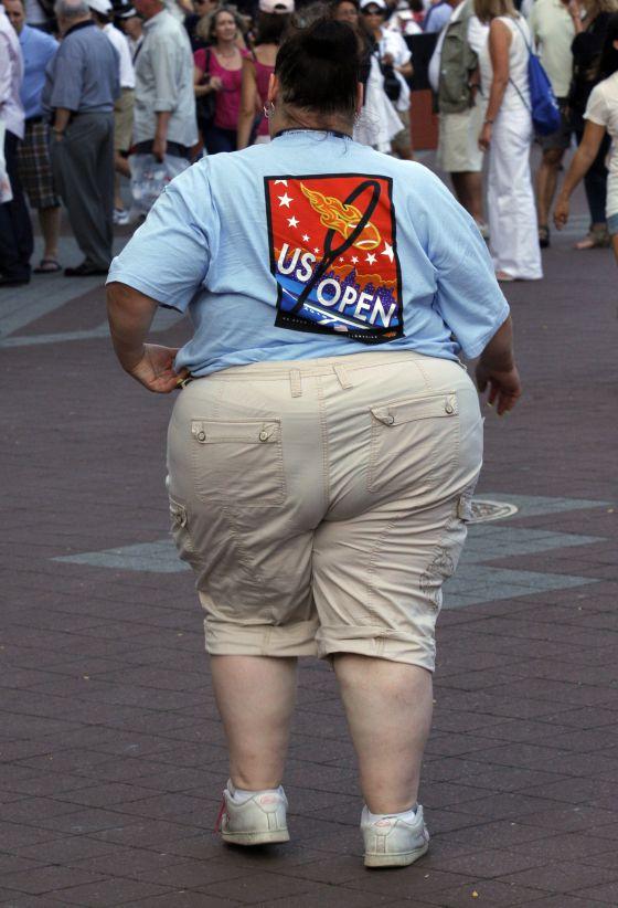 La obesidad es uno de los factores que más lastra es estado de salud de la población.