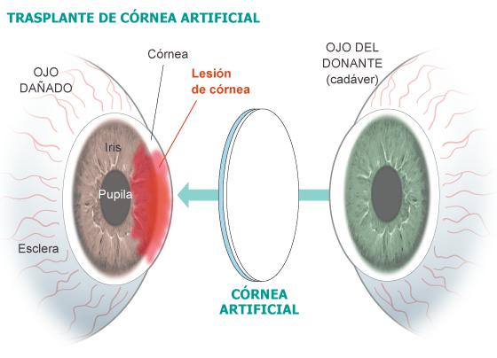 20 pacientes recibirán córneas de laboratorio para recuperar visión