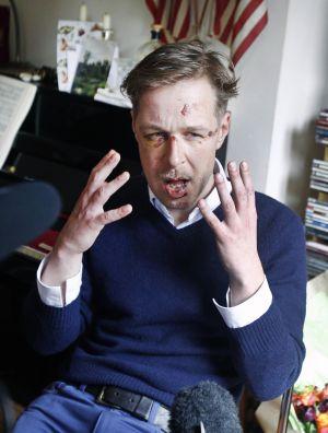Wilfred de Bruijn, víctima de un ataque homófobo.