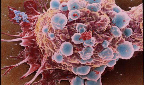 Microfotografía coloreada de células de cáncer de mama.