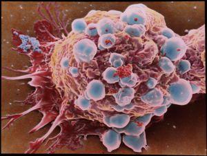 Células cancerosas.