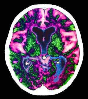 Los marcadores genéticos dan pistas sobre las bases del alzhéimer