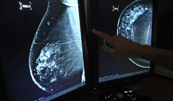 Un médico muestra un tumor en un pecho.