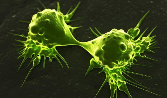 La diabetes incrementa el riesgo de padecer cáncer de mama y colon