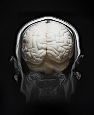 os procesos de destrucción cerebral y los de activación celular se contraponen.
