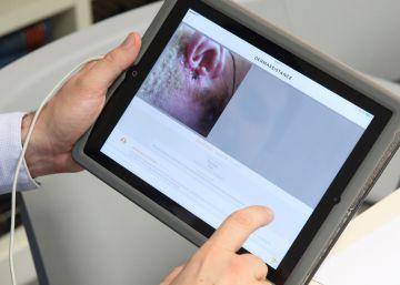 La primera 'app' para diagnosticar problemas en la piel a distancia