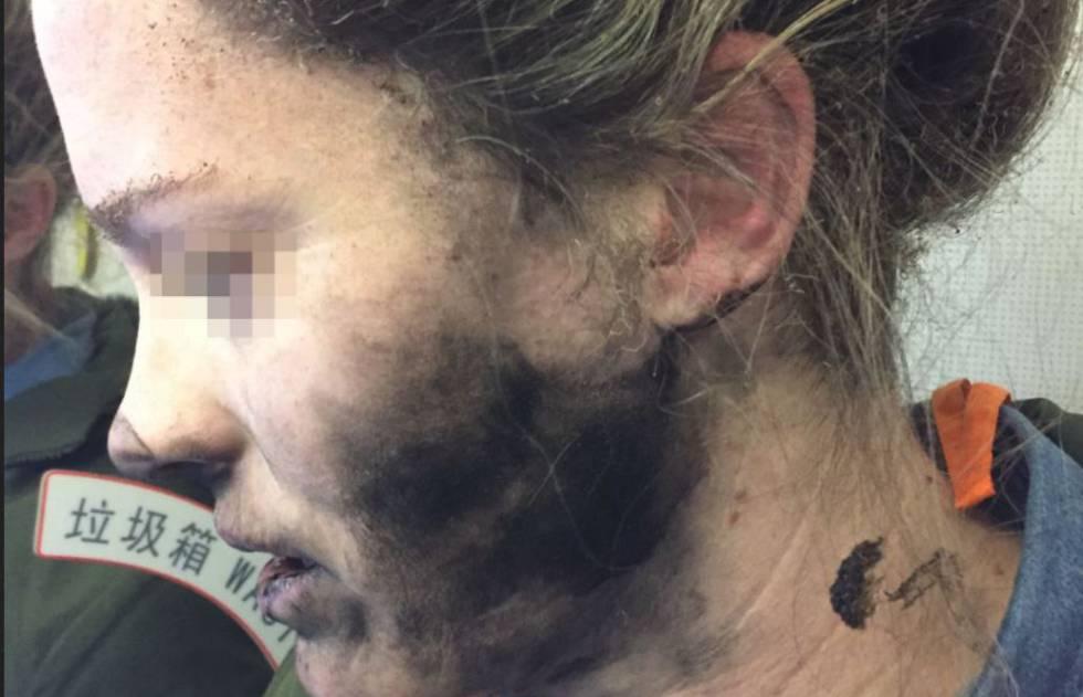 Pasajera australiana a la que le explotaron los cascos en un avión.