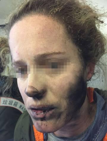 Daños a la mujer que le explotaron los auriculares en un vuelo.