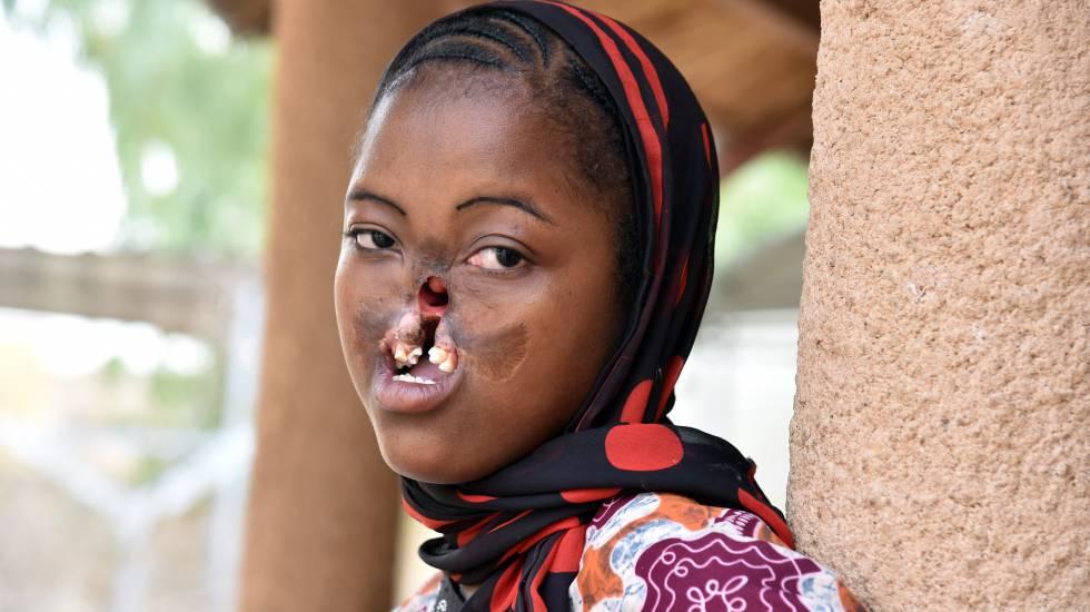 Uma garota com noma posa num centro da ONG Sentinelles em Zinder (Níger)