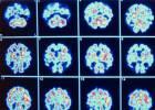 Identificado um novo tipo de demência confundido até agora com o Alzheimer