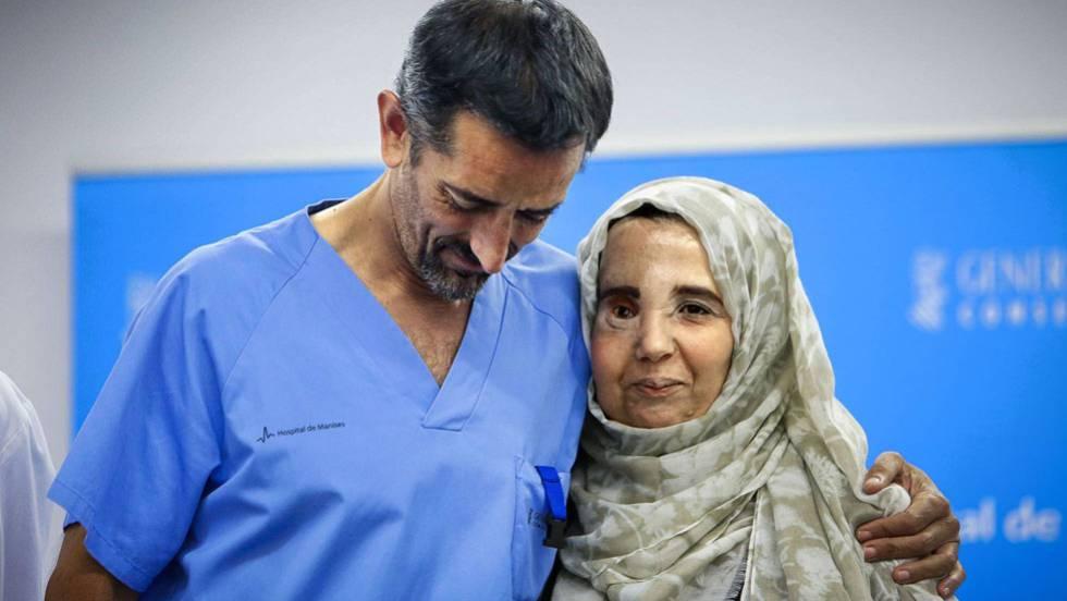 El doctor Cavadas recupera el rostro de una mujer marroquí rechazada