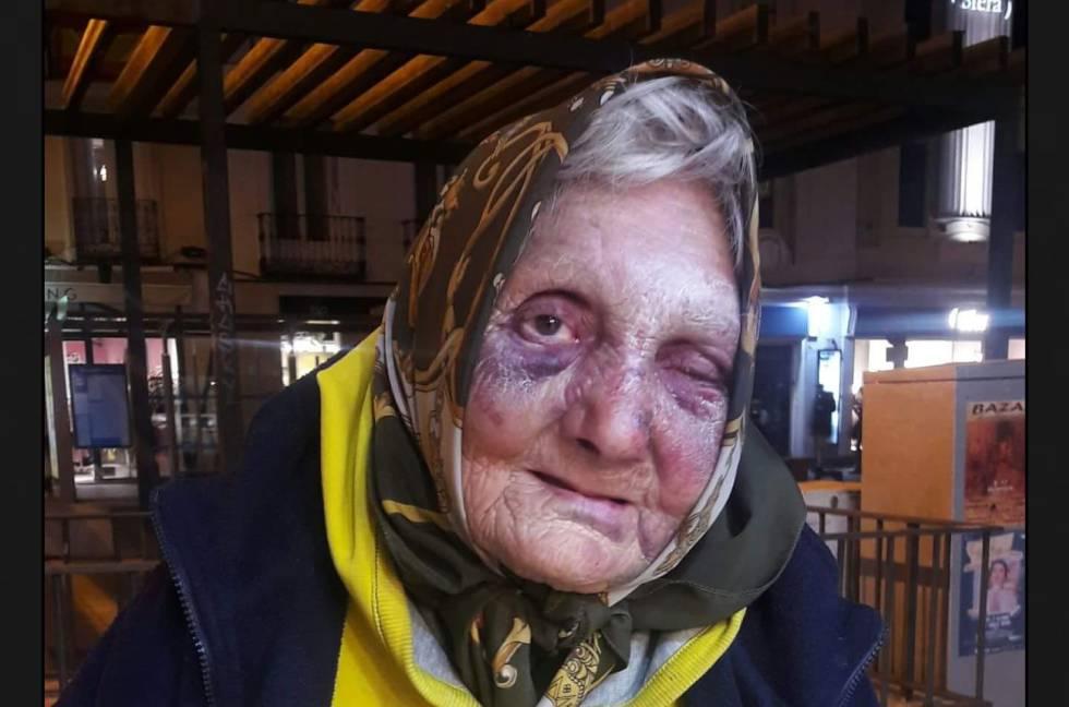 Anciana agredida en el distrito de Centro de Madrid.
