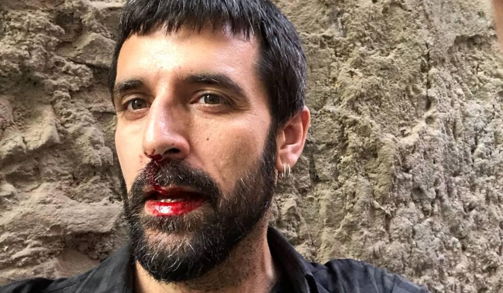 El fotoperiodista Jordi Borràs, tras la agresión.