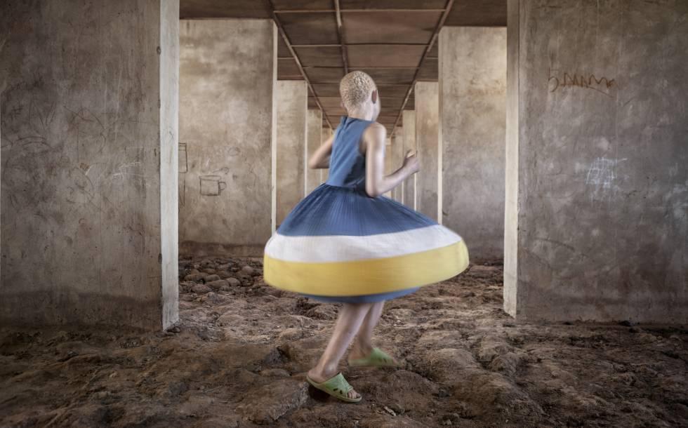 Kelen dance 2 retrata a una joven albina en Tanzania fotografiada por la fotoperiodista Ana Palacios.