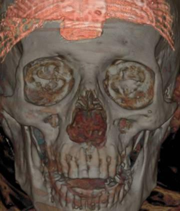 Tomografía de la momia de Nespamedu.