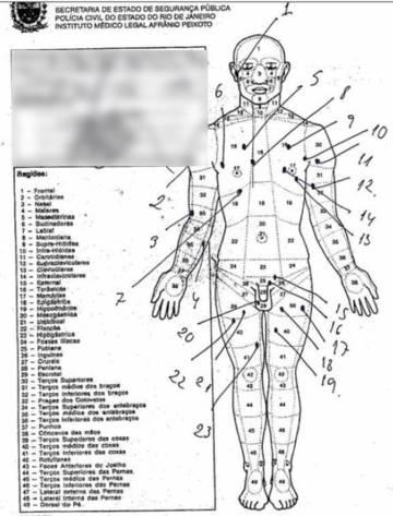 La autopsia que muestra los 30 tiros de Anderson do Carmo.