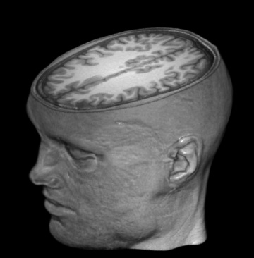 Una imagen del cerebro de Garéyev
