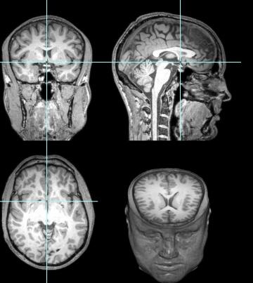 El estudio del cerebro de Garéyev mostró conexiones extraordinarias entre distintas partes