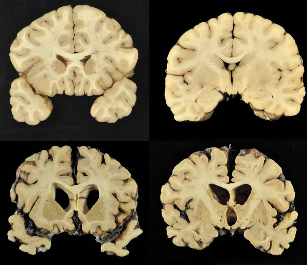 Futebol americano  99% dos ex-jogadores da NFL têm lesões cerebrais ... 2b402dbc5e0e1