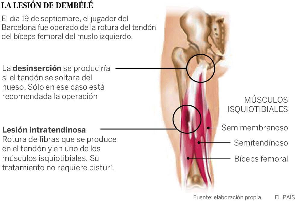 Tendinitis de isquiotibiales