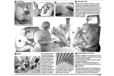 cirugía de próstata con robot video para niños