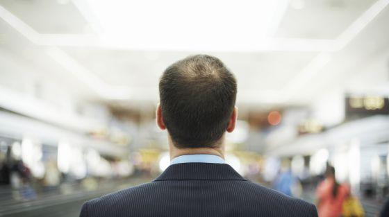 Diez cosas sobre la caída de cabello que (quizás) desconocías