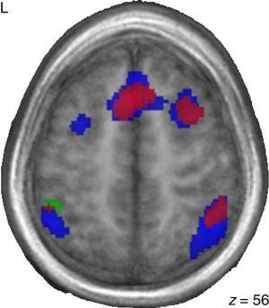 Áreas cerebrales que se activan durante las tareas de francés para niños bilingües (en rojo), niños chinos adoptados en Francia (en azul) y niños franceses (en verde).