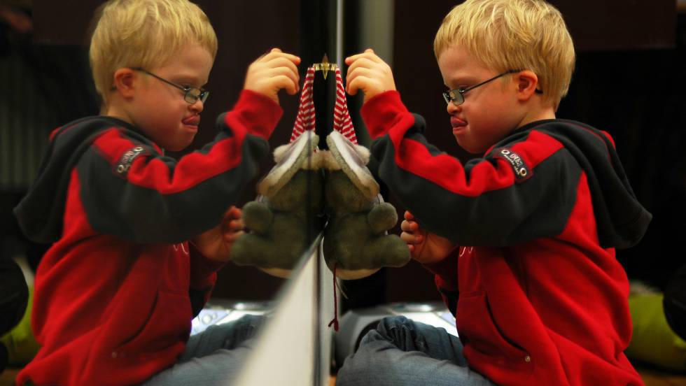 A síndrome de Down é um transtorno genético em que uma pessoa tem 47 cromossomos, e não os 46 habituais.