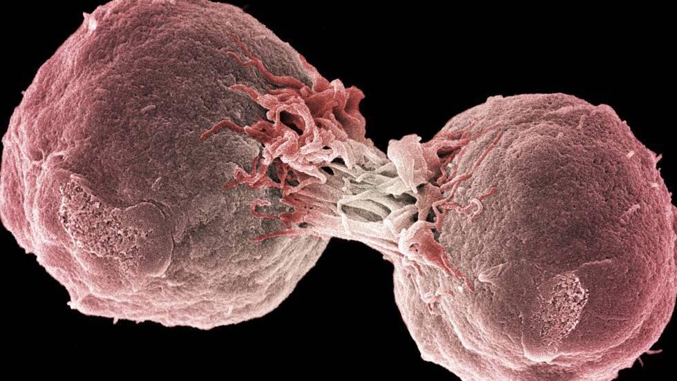 El tratamiento contra el cáncer que sustituirá a la quimioterapia
