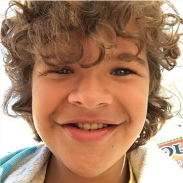 Matarazzo no se corta en compartir primerísimos planos de sus dientes falsos en sus redes sociales.