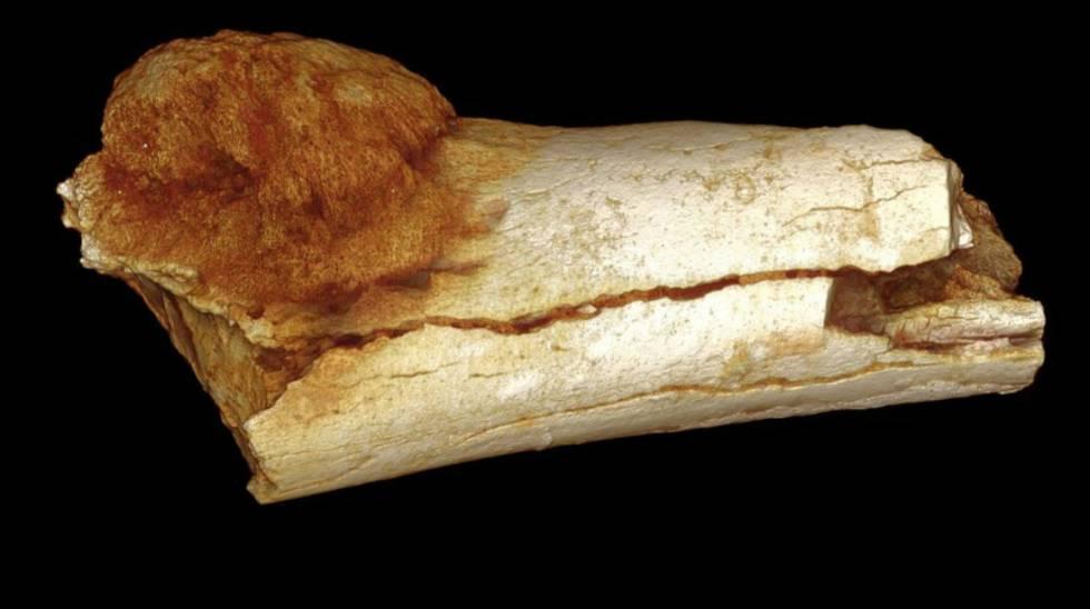 Qué puede enseñarnos sobre el cáncer el fósil de un homínido de 1,7 ...