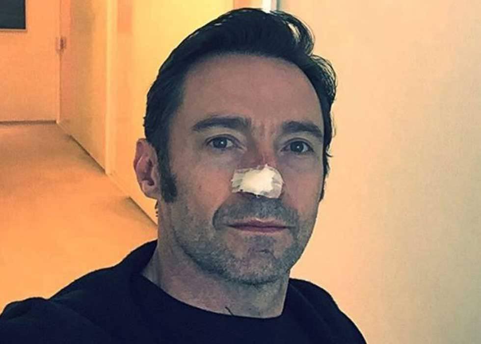 Hugh Jackman Confirma Que Ha Sido Operado Por Sexta Vez De