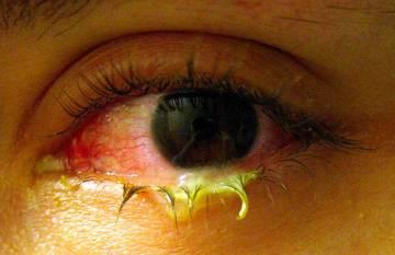 porque se ponen los ojos rojos a los niños