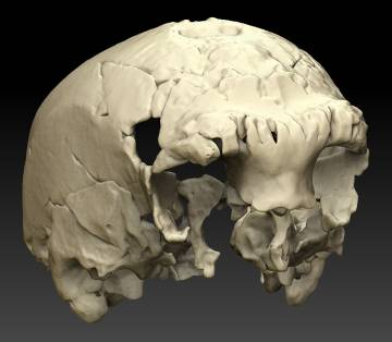 Reconstrucción del cráneo en base a un escáner