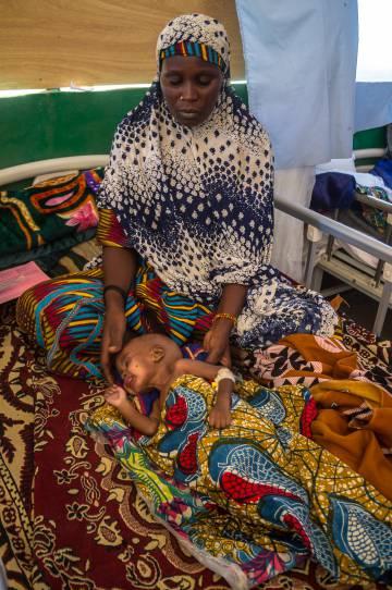 Una mujer cuida de su sobrino desnutrido, huérfano y seropositivo, en la unidad de desnutrición de Liwa (Chad).
