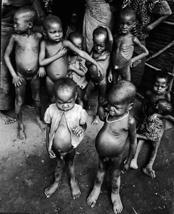 Niños hambrientos durante la guerra de Biafra.