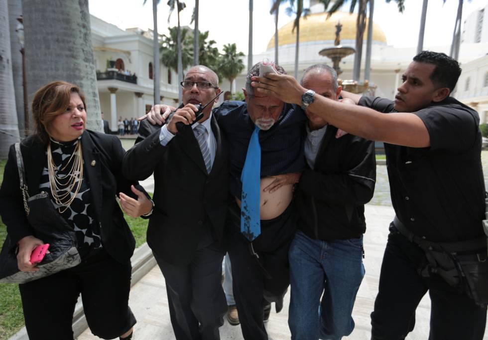 El diputado opositor Américo De Grazia es trasladado después de haber sido herido.