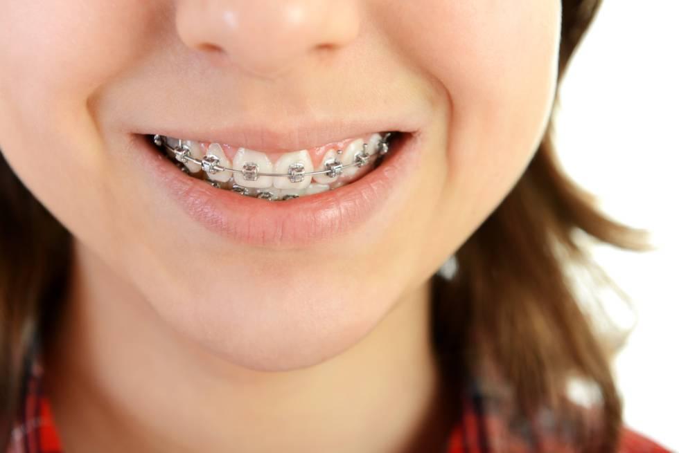 Edad adecuada para colocar ortodoncia