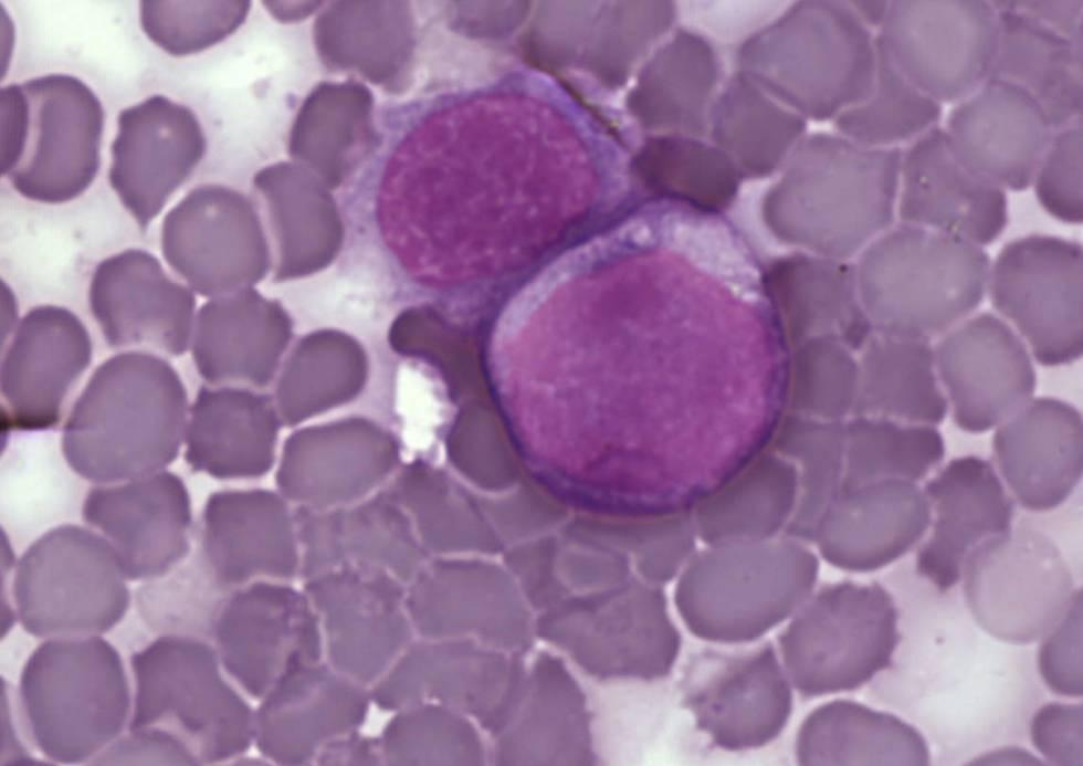 Terapia genica leucemia
