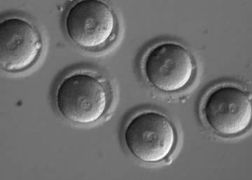 Científicos de varios países corrigen una enfermedad hereditaria en embriones humanos