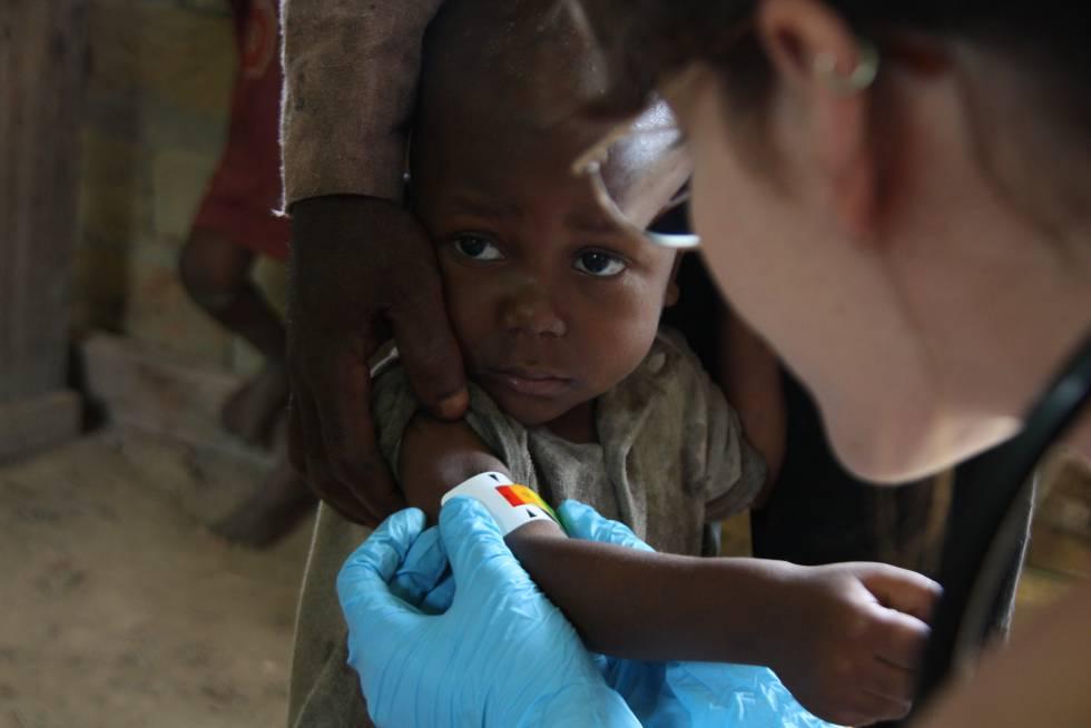 Niño pigmeo con malnutrición.