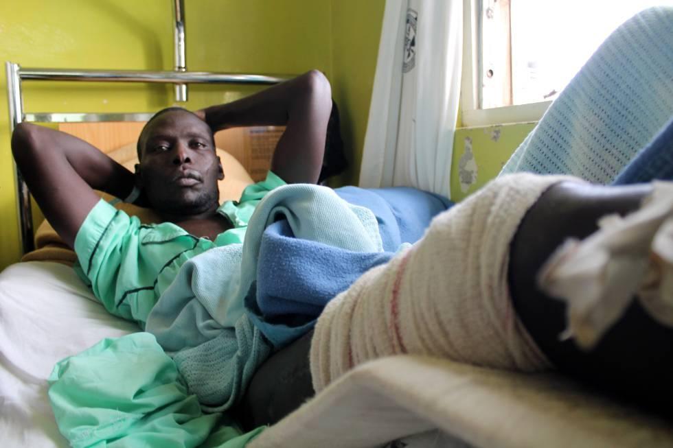 Yuma (23 años) no podrá volver a correr por las heridas sufridas en la intervención policial.