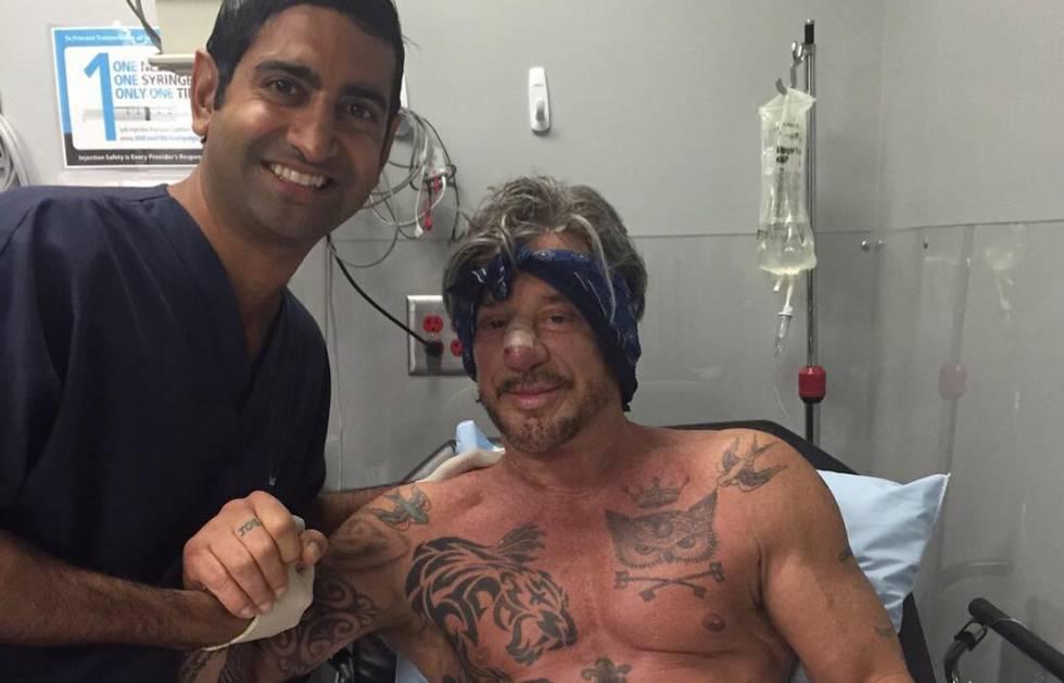 Mickey Rourke se opera de nuevo la nariz y lo enseña en Instagram ...