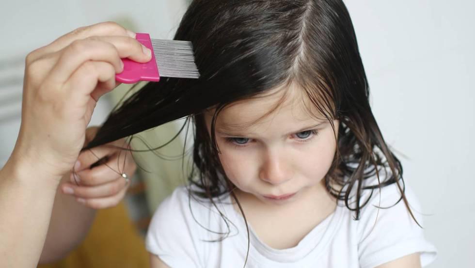¡Cuidado! Los tratamientos contra los piojos no son de uso diario