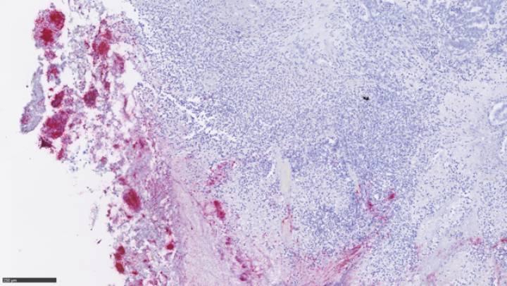 Un tumor colorrectal infiltrado por 'Fusobacterium' (en rojo).