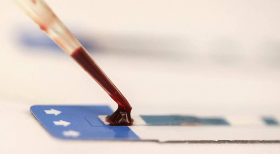 Una enfermera analiza una muestra de sangre durante una prueba gratuita de VIH en Bangkok (Tailandia), en 2014.